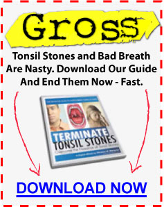 How To Get Tonsil Stones To Surface